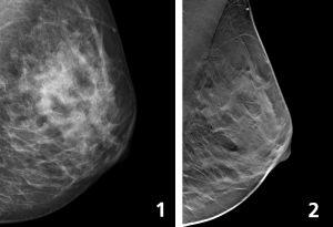 Två bilder som jämför traditionell mammografi och 3D-mammografi